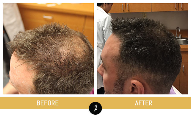 Hair Restoration Gallery at Dr. Chow's Rejuvenation Practice in Lee's Summit, MO