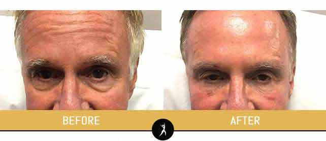 Fillers Gallery at Dr. Chow's Rejuvenation Practice in Lee's Summit, MO