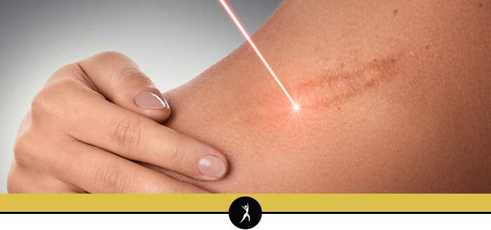 Laser Scar Revision in Lee's Summit, MO