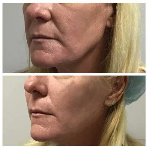 Juvederm VolumaInjections in Lee's Summit, MO