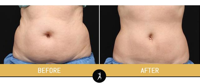 CoolSculpting Gallery at Dr. Chow's Rejuvenation Practice in Lee's Summit, MO