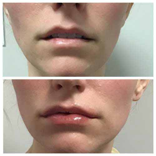 Juvederm Ultra XC Lip Injections in Lee's Summit, MO