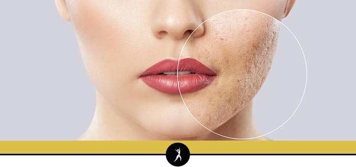 Fotona for Acne & Acne Scarring in Lee's Summit, MO