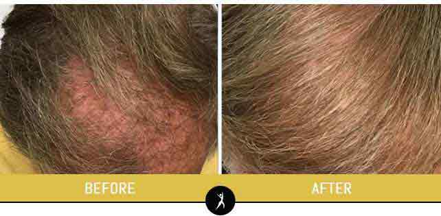 Hair Regrowth Treatment in Lee's Summit, MO