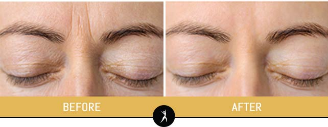 Botox Anti-Wrinkle Treatment in Lee's Summit, MO